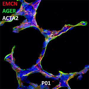 Postnatal Day 1 C57BL6 EMCN, AGER, and ACTA2 Confocal Imaging