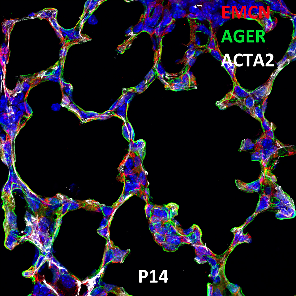 Post Natal Day 14 Confocal Imaging Showing Protein Expression of Emcn, Ager and Acta2 Genes