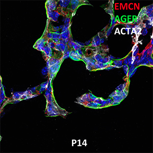 Postnatal Day 14 C57BL6 EMCN, AGER, and ACTA2 Confocal Imaging