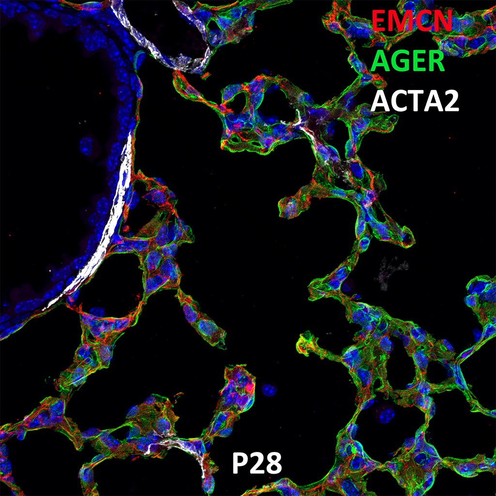 Post Natal Day 28 Immunofluorescence and Confocal Imaging Showing  Expression of Emcn, Ager, and ACTA2 Genes