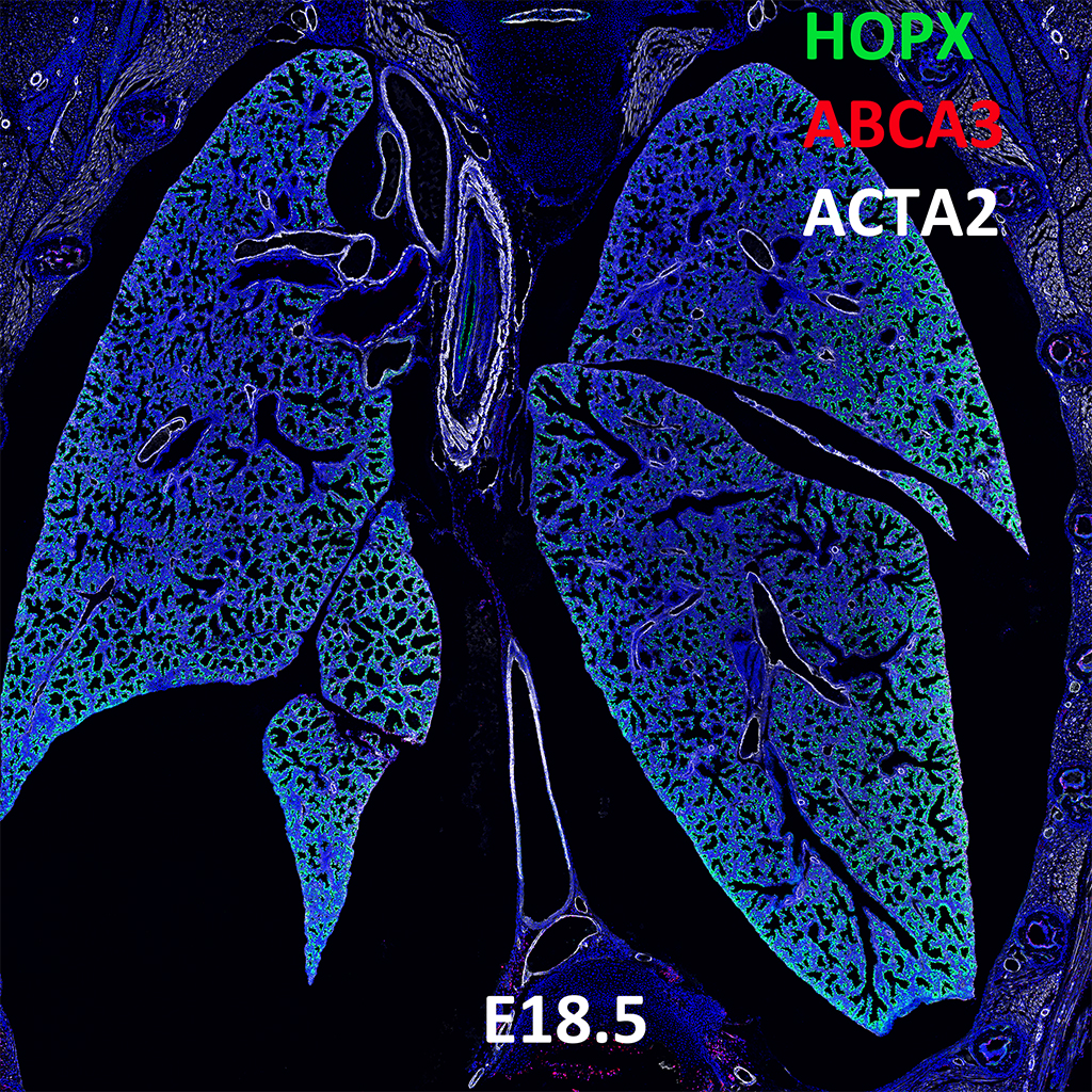 E18.5 Confocal Imaging Showing Protein Expression of Hopx, Abca3 and Acta2 Genes