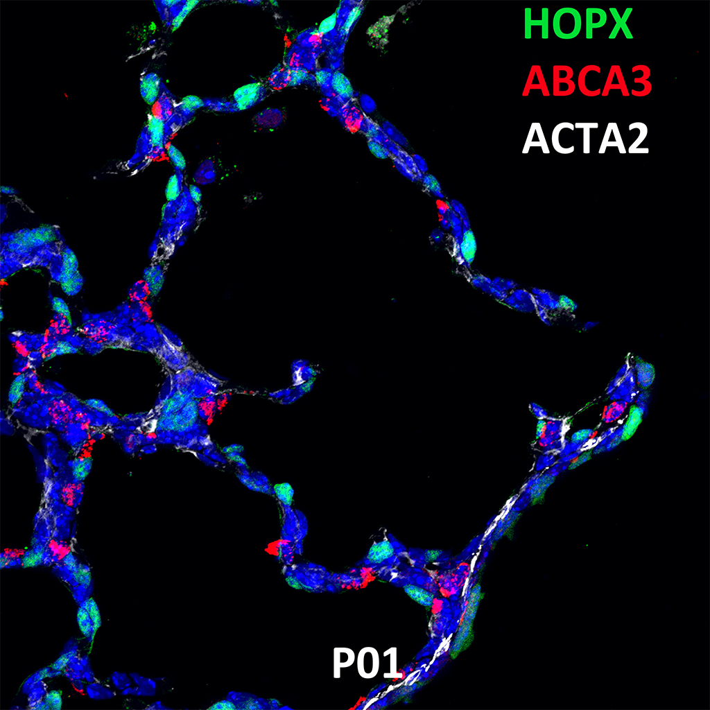 Post Natal Day 1 Confocal Imaging Showing Protein Expression of Hopx, Abca3 and Acta2 Genes