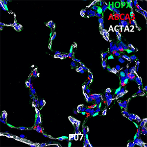 Postnatal Day 7 C57BL6 HOPX, ABCA3, and ACTA2 Confocal Imaging