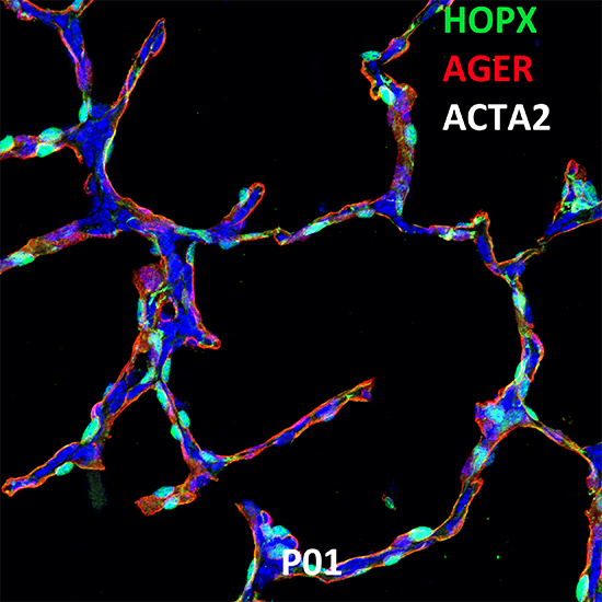 Postnatal Day 1 C57BL6 HOPX, AGER, and ACTA2 Confocal Imaging