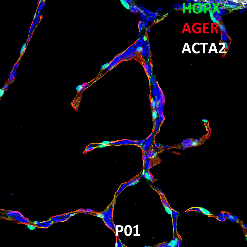 Post Natal Day 1 Confocal Imaging Showing Protein Expression of Hopx, Ager and Acta2 Genes