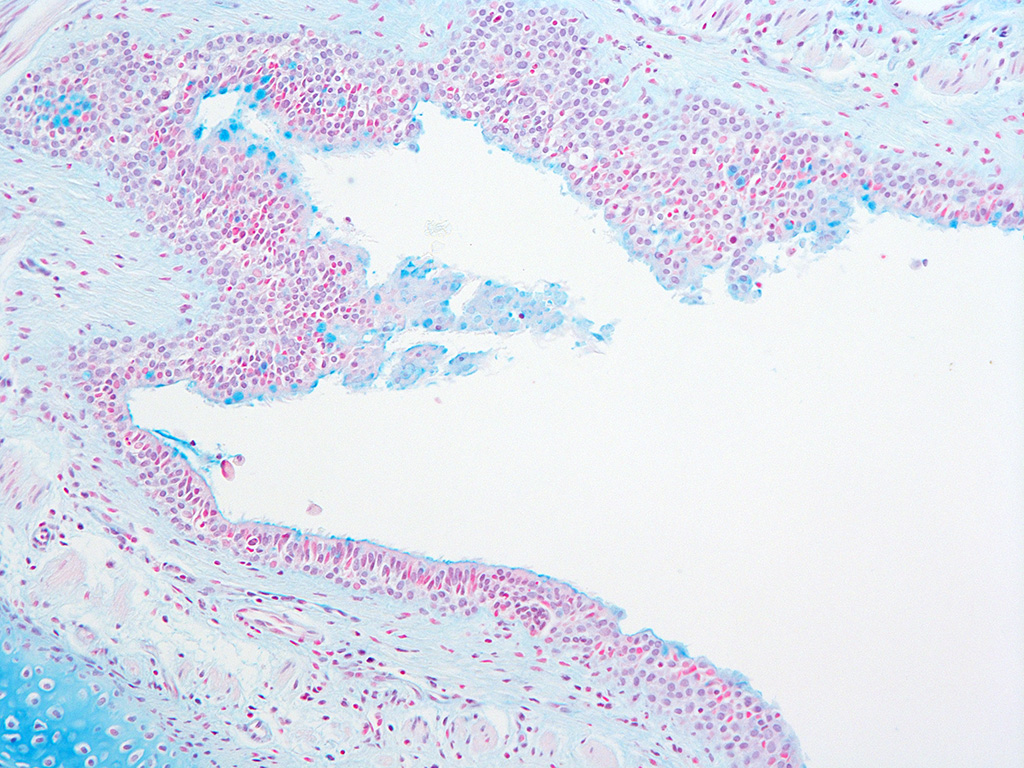 Alcian Blue Staining of 9 Month Old Human Lung