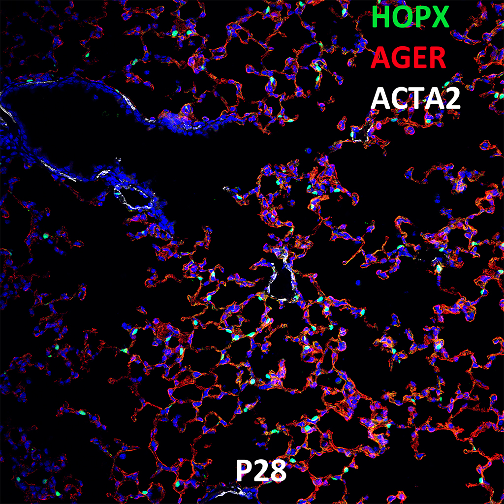 Post Natal Day 28 Confocal Imaging Showing Protein Expression of HOPX, AGER, and ACTA2 Genes