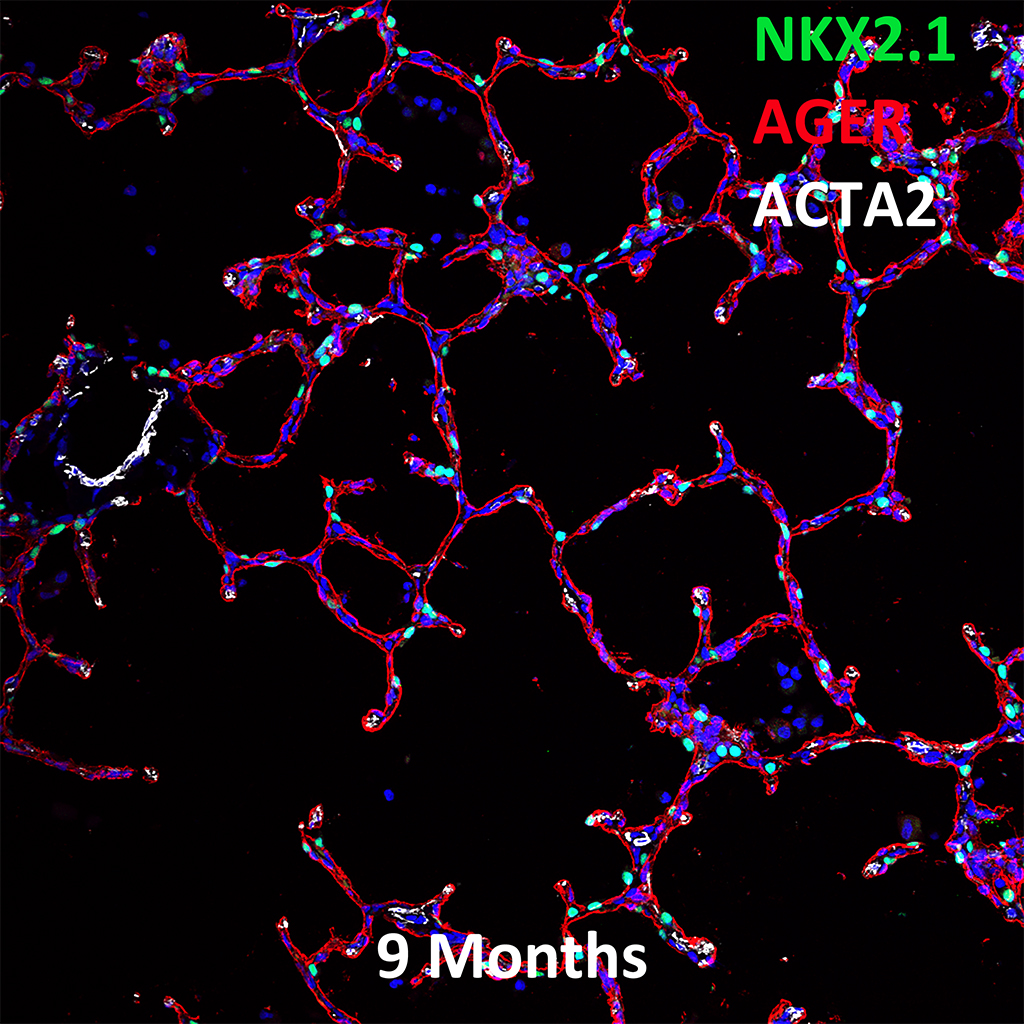 9 Month Human Lung Confocal Imaging Showing Protein Expression of Nkx2.1, AGER, and Acta2 Genes