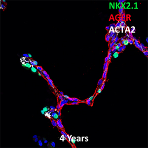 4 Year Old Human Lung NKX2.1, AGER, and ACTA2 Confocal Imaging