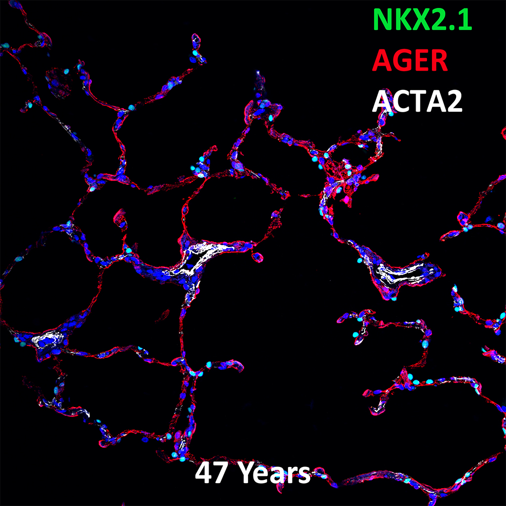 47 Year Human Lung Confocal Imaging Showing Protein Expression of NKX2.1, AGER, and ACTA2 Genes