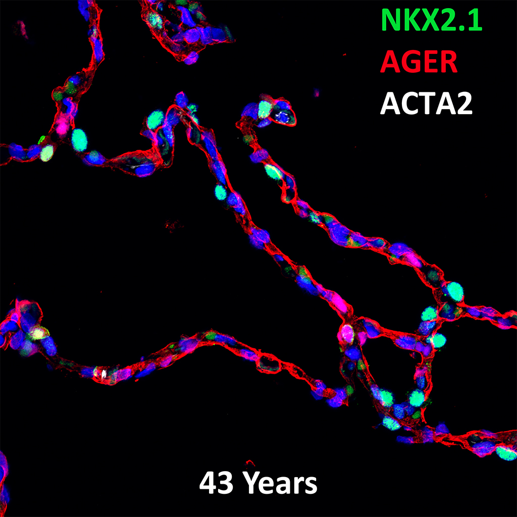 43 Year Human Lung Confocal Imaging Showing Protein Expression of NKX2.1, AGER, and ACTA2 Genes