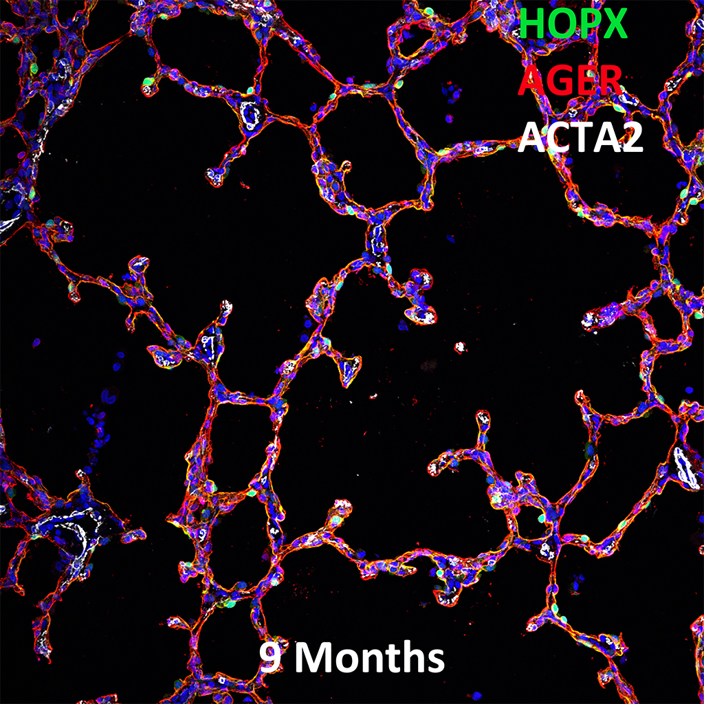 9 Month Human Lung Confocal Imaging Showing Protein Expression of HOPX, AGER, and ACTA2 Genes