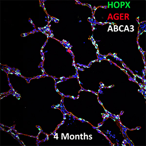 4 Month Human Lung HOPX, AGER, and ABCA3 Confocal Imaging