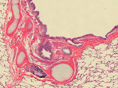 H&E Staining of 3 Year Old Human Lung D032-RLL-10B2.18