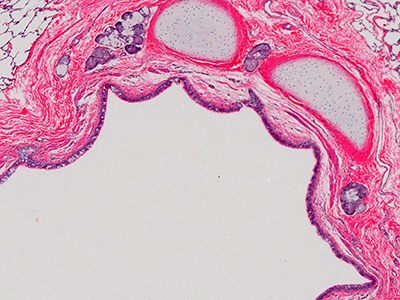 H&E Staining of 3 Year Old Human Lung D032-RLL-7B2.16
