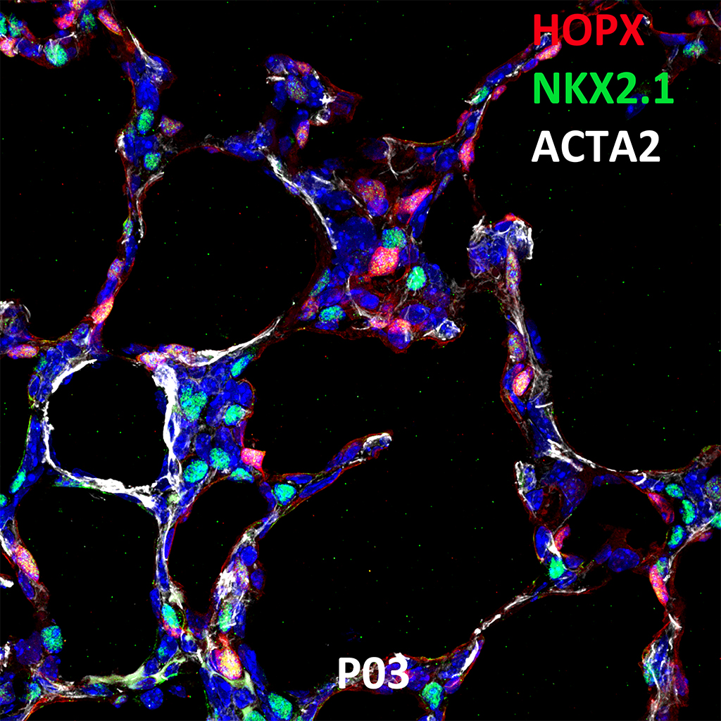 Post Natal Day 03 Confocal Imaging Showing Protein Expression of HOPX, NKX2.1, and ACTA2 Genes