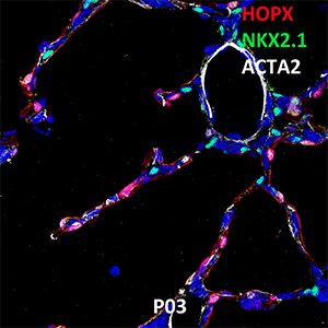 Postnatal Day 03 C57BL6 HOPX, NKX2.1, and ACTA2 Confocal Imaging