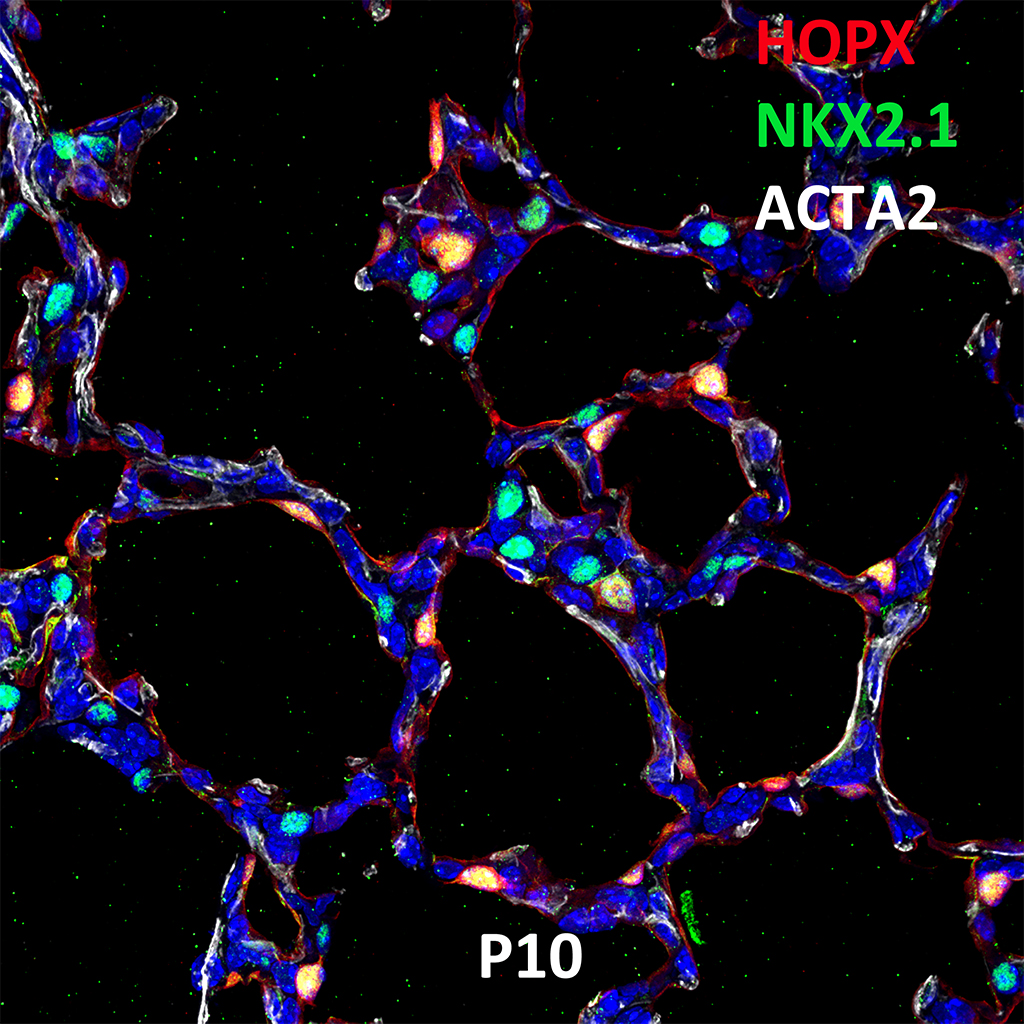 Post Natal Day 10 Confocal Imaging Showing Protein Expression of HOPX, NKX2.1, and ACTA2 Genes