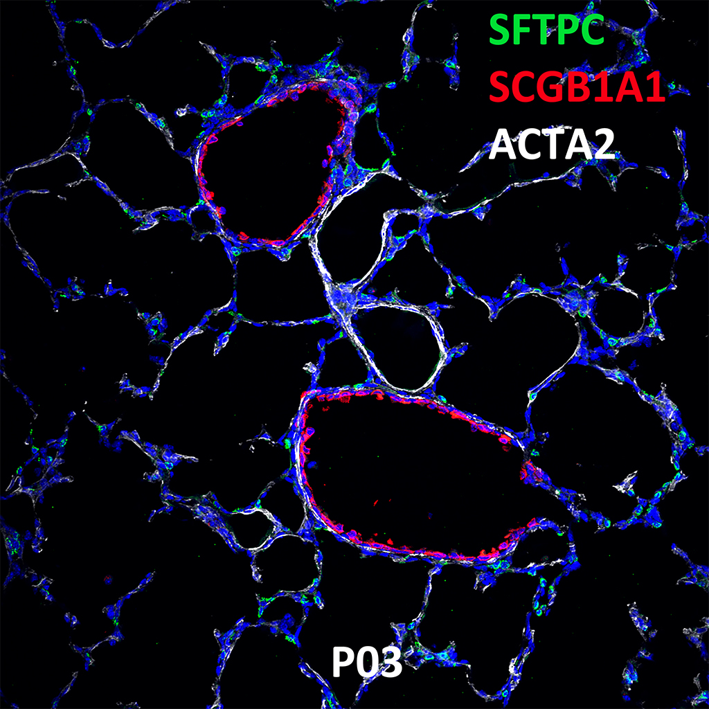 Post Natal Day 03 Confocal Imaging Showing Protein Expression of SFTPC, SCGB1A1, and ACTA2 Genes