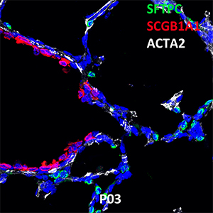 Postnatal Day 03 C57BL6 SFTPC, SCGB1A1, and ACTA2 Confocal Imaging