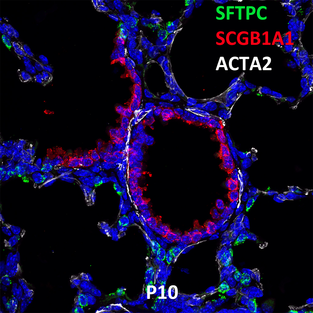 Post Natal Day 10 Confocal Imaging Showing Protein Expression of SFTPC, SCGB1A1, and ACTA2 Genes