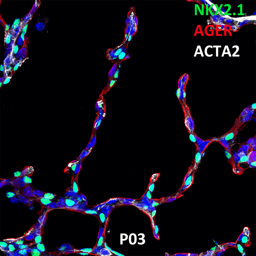 Post Natal Day 03 Confocal Imaging Showing Protein Expression of NKX2.1, AGER, and ACTA2 Genes