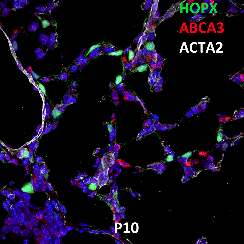 Post Natal Day 10 Confocal Imaging Showing Protein Expression of HOPX, ABCA3, and ACTA2 Genes