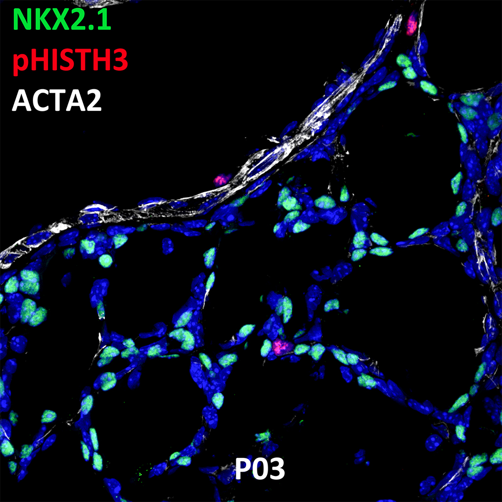 Postnatal Day 03 Confocal Imaging Showing Protein Expression of NKX2.1, pHISTH3, and ACTA2 Genes