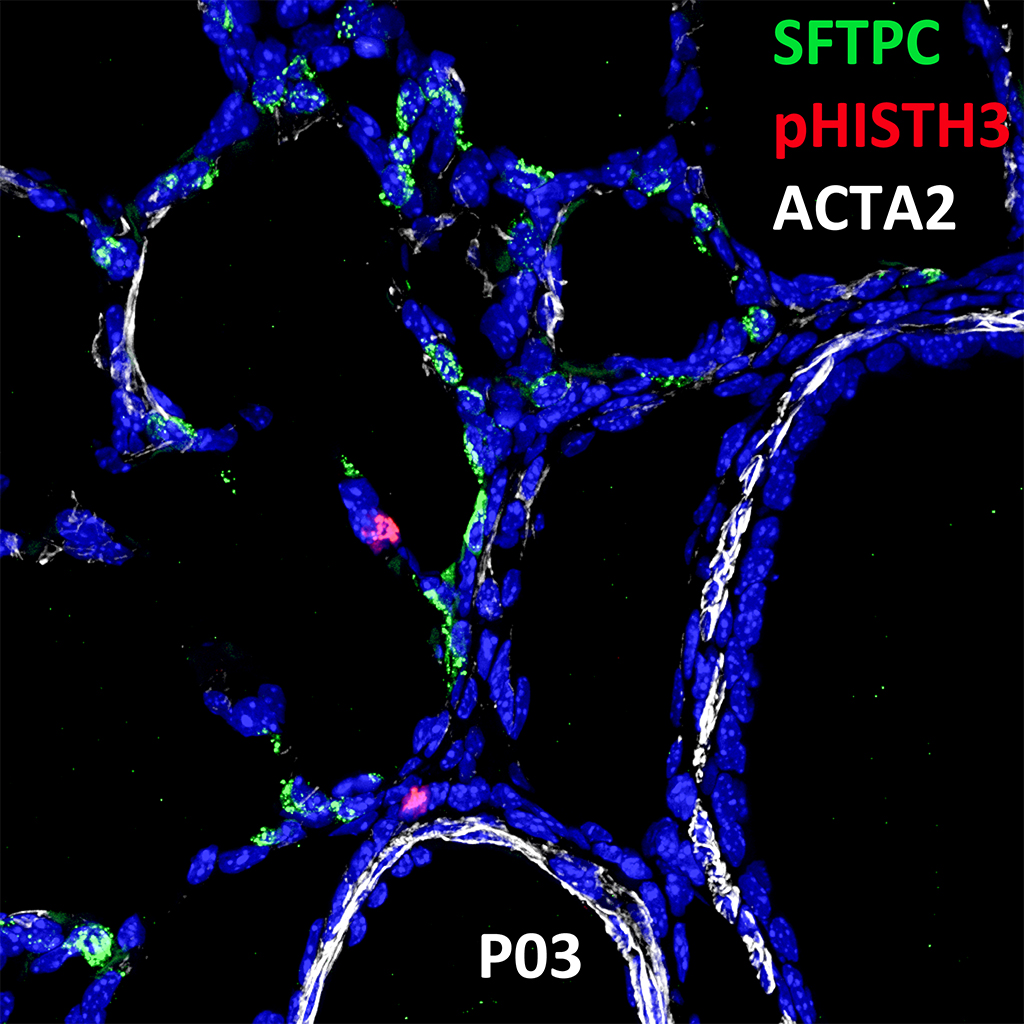 Postnatal Day 03 Confocal Imaging Showing Protein Expression of SFTPC, pHISTH3, and ACTA2 Genes