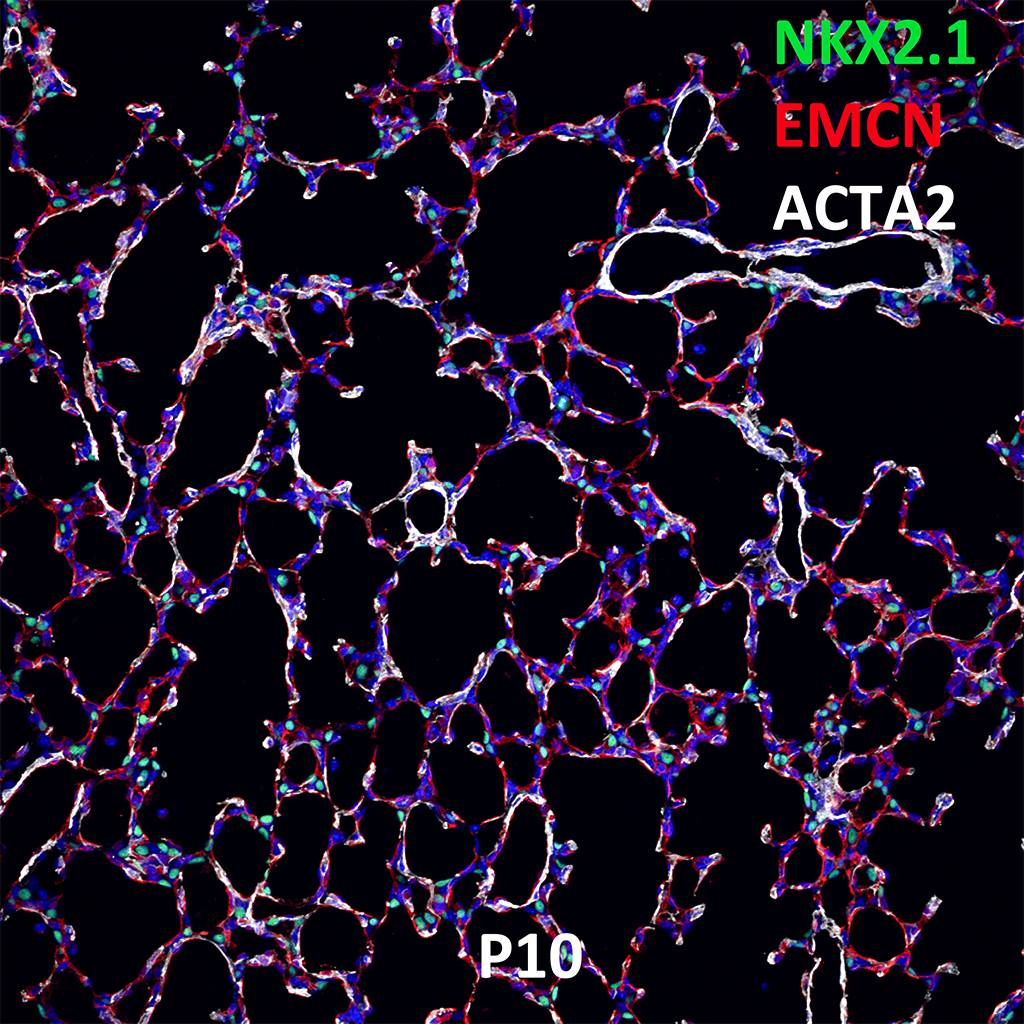 Postnatal Day 10 Confocal Imaging Showing Protein Expression of NKX2.1, EMCN, and ACTA2 Genes