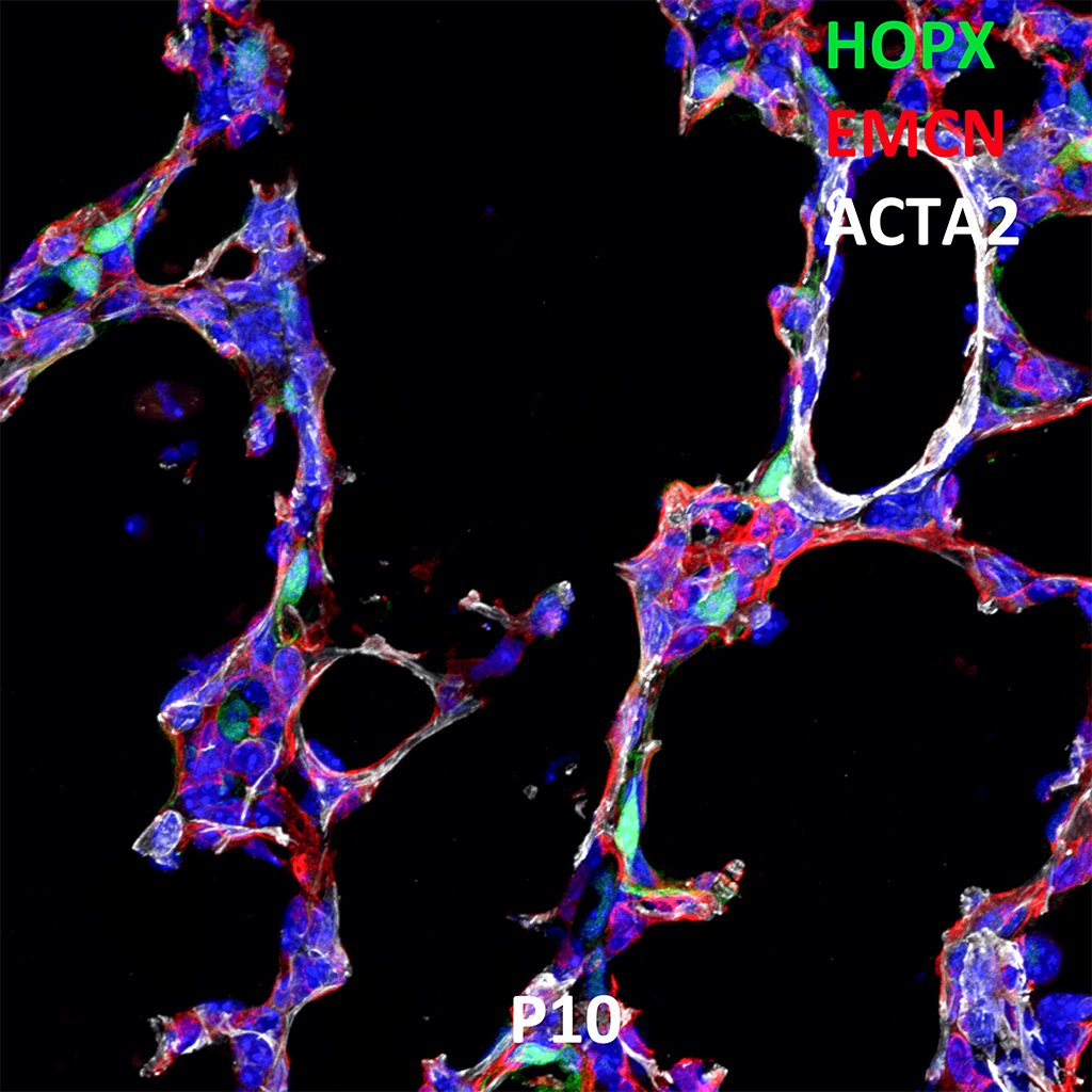 Postnatal Day 10 Confocal Imaging Showing Protein Expression of HOPX, EMCN, and ACTA2 Genes