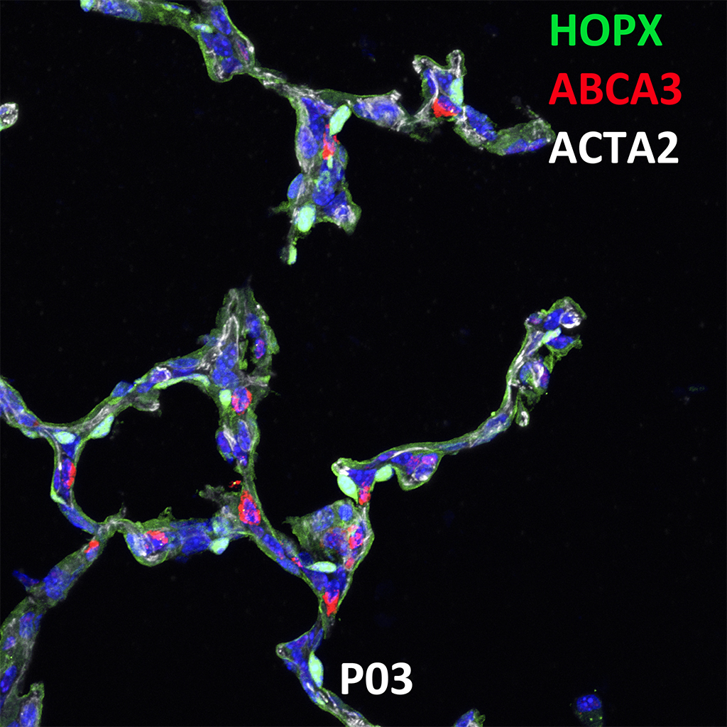 Post Natal Day 03 Confocal Imaging Showing Protein Expression of HOPX, ABCA3, and ACTA2 Genes