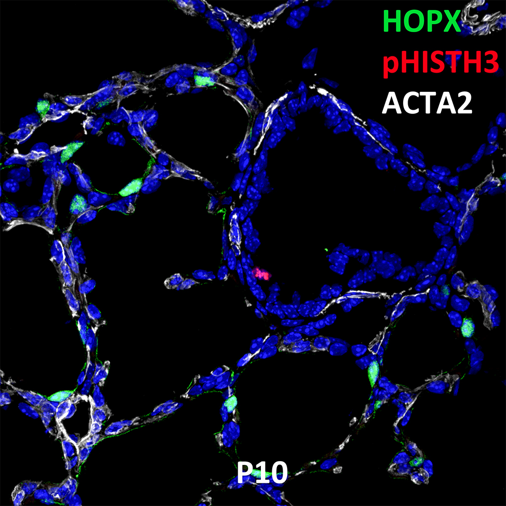 Postnatal Day 10 Confocal Imaging Showing Protein Expression of HOPX, pHISTH3, and ACTA2 Genes