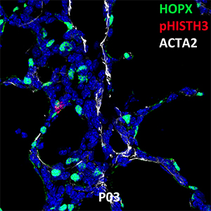 Postnatal Day 03 C57BL6 HOPX, pHISTH3, and ACTA2 Confocal Imaging