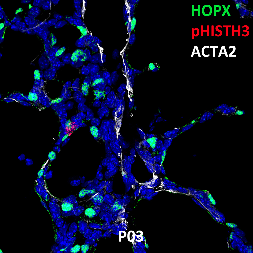 Postnatal Day 03 Confocal Imaging Showing Protein Expression of HOPX, pHISTH3, and ACTA2 Genes