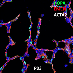 Postnatal Day 03 C57BL6 HOPX, EMCN, and ACTA2 Confocal Imaging
