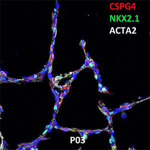 Postnatal Day 03 C57BL6 CSPG4, NKX2.1, and ACTA2 Confocal Imaging