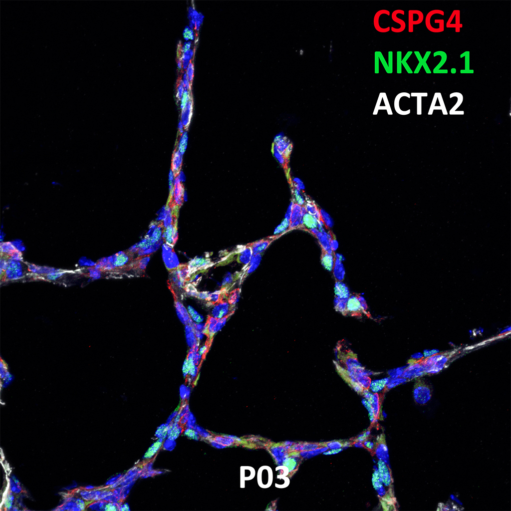 Postnatal Day 03 Confocal Imaging Showing Protein Expression of CSPG4, NKX2.1, and ACTA2 Genes