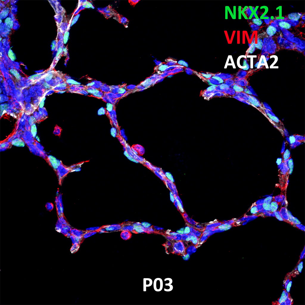 Post Natal Day 3 Confocal Imaging Showing Protein Expression of Nkx2.1, Vim and Acta2 Genes