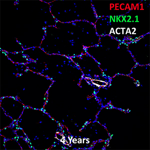 4 Year Old Human Lung PECAM-1, NKX2.1, and ACTA2 Confocal Imaging
