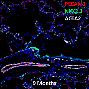 9 Month Old Human Lung PECAM-1, NKX2.1, and ACTA2 Confocal Imaging