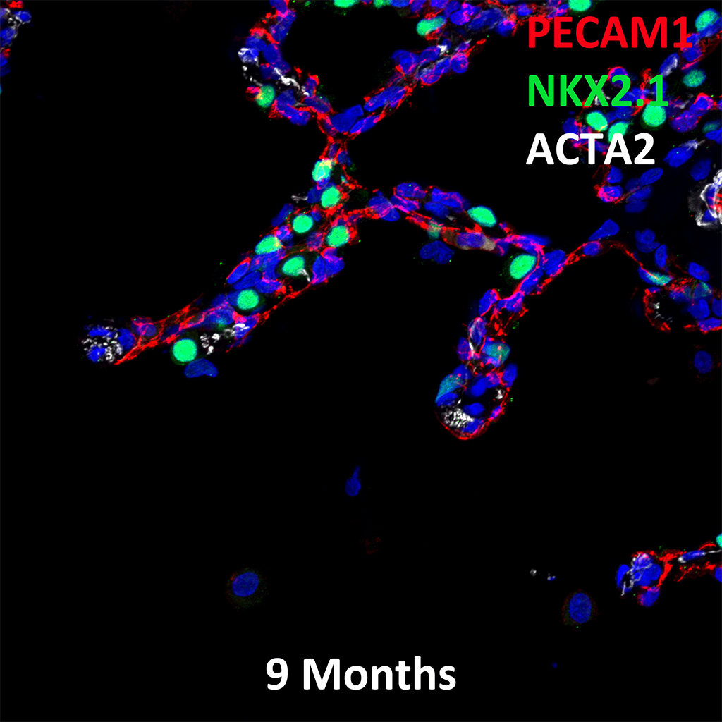 9 Month Old Human Lung Immunofluorescence and Confocal Imaging Showing Expression of Pecam-1, Nkx2.1, and Acta2 Genes