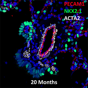 20 Month Old Human Lung PECAM-1, NKX2.1, and ACTA2 Confocal Imaging