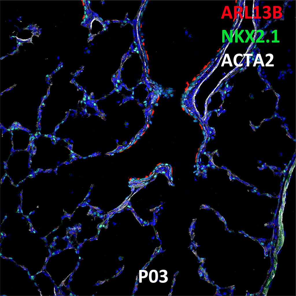 Post Natal Day 3 Immunofluorescence and Confocal Imaging Showing  Expression of ARL13B, NKX2.1, and ACTA2