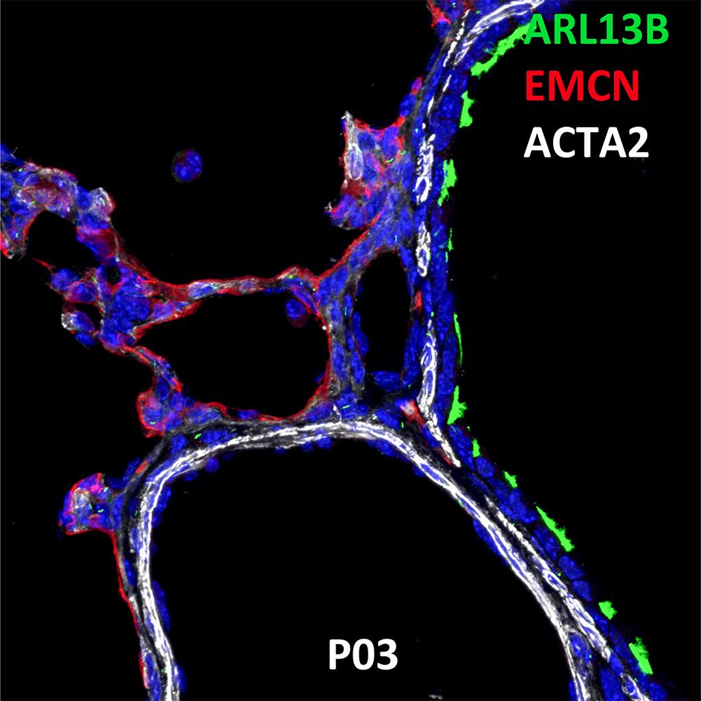 Postnatal Day 3 C57BL6 ARL13B, EMCN, and ACTA2 Confocal Imaging