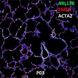 Postnatal Day 03 C57BL6 ARL13B, EMCN, and ACTA2 Confocal Imaging