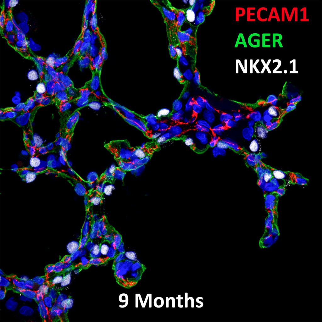 9 Month Old Human Lung Immunofluorescence and Confocal Imaging Showing Expression of Pecam-1, Ager, and Nkx2.1 Genes