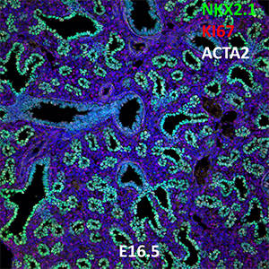 E16.5 C57BL6 NKX2.1, KI67, and ACTA2 Confocal Imaging
