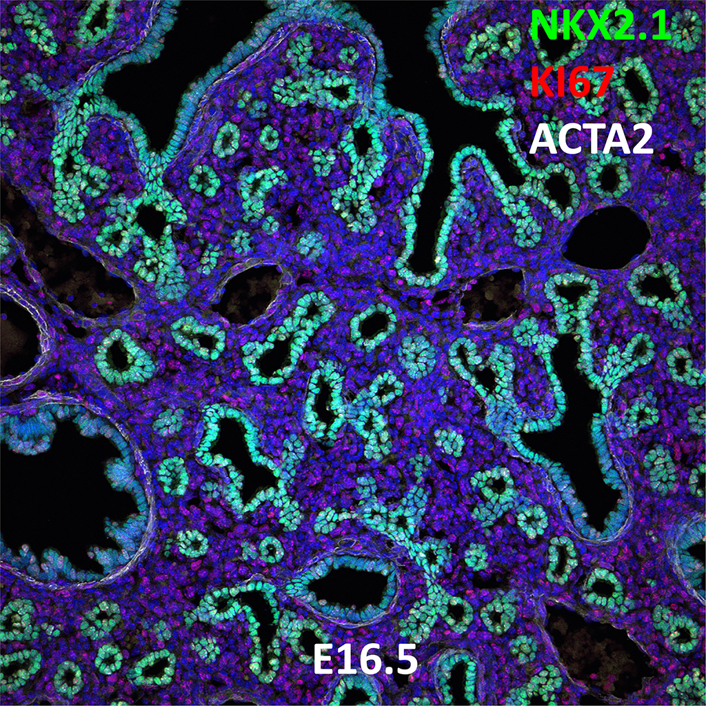E16.5 Confocal Imaging Showing Protein Expression of Nkx2.1, Ki67, and Acta2 Genes