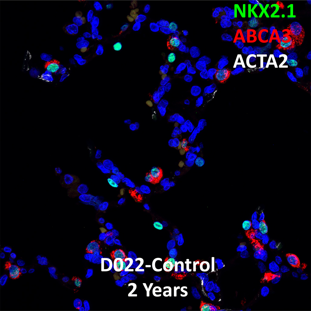 2 Year Human Lung Immunofluorescence and Confocal Imaging Showing Expression of Nkx2.1, Abca3, and Acta2 Genes